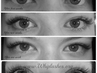 Open Eye Weeks Collage Bw